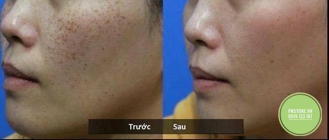 Kem thuốc bắc đông y của Viện Y Dược Học Cổ truyền Việt Nam