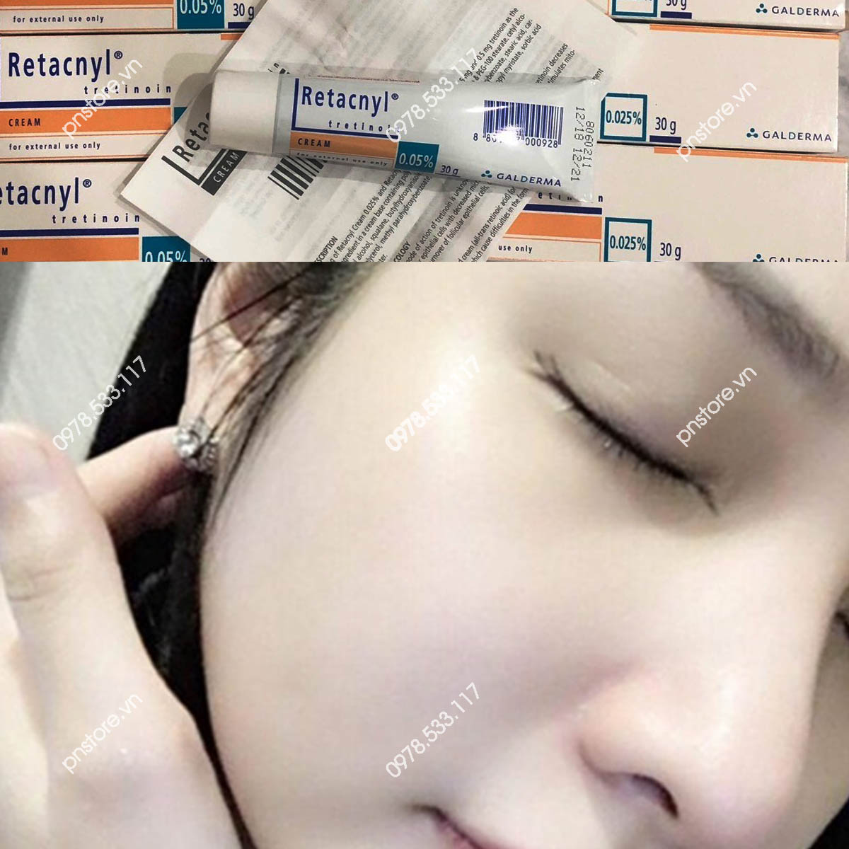 Kem đặc trị mụn Retacnyl Tretinoin Cream 0.05% Galderma chính hãng (Pháp)