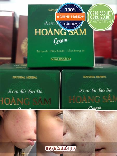 Kem dong y tai tao da duong da Hoang Sam 100 thao duoc thien nhien