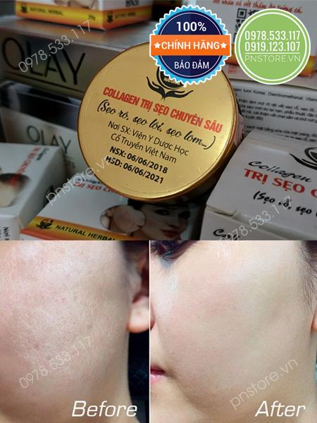 Kem Đông Y đặc trị sẹo Collagen Scar Treatment của Viện Y Dược Học cổ truyền Việt Nam