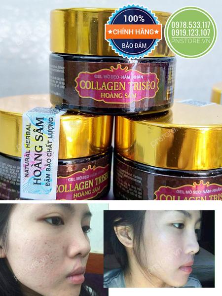 Kem đông y trị sẹo - nám - nhăn Collagen TRISEO Hoàng Sâm (20g)