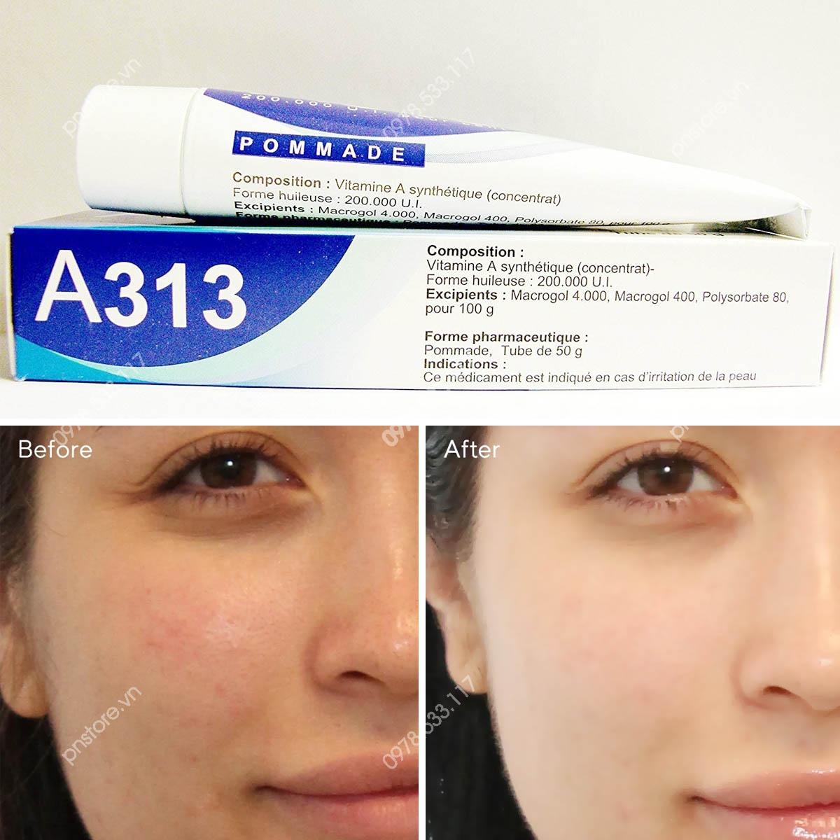 Kem trị mụn chống lão hóa A313 Pommade Retinol 0.02% chính hãng (Pháp) - PN99885
